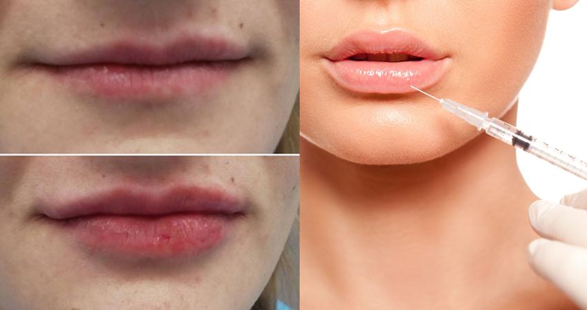 Augmentarea buzelor